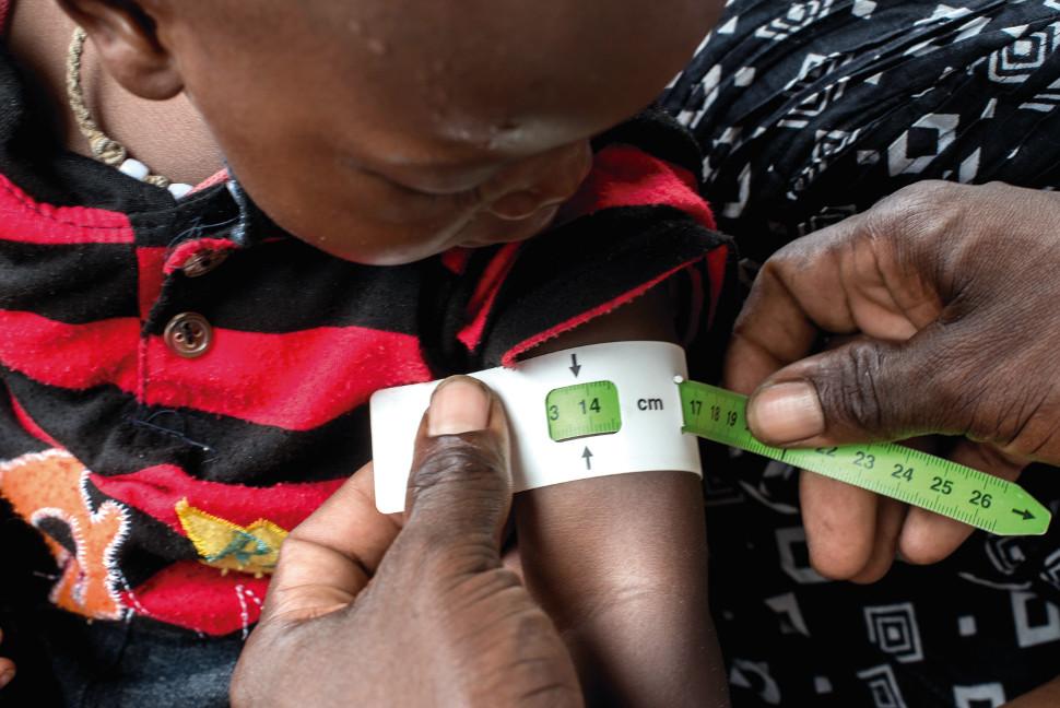 Medir la circunferencia del brazo de un niño es uno de los métodos para detectar la desnutrición. Foto: @BrunoDemeocq/Unicef
