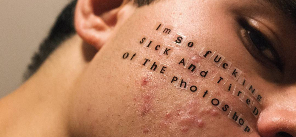 El fotógrafo que quiere normalizar el acné
